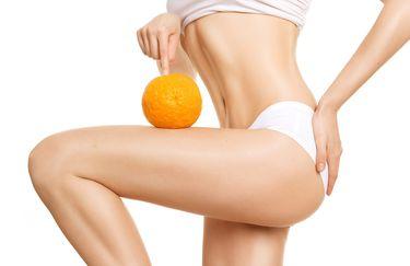 Sinergie - Anti Cellulite