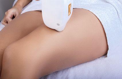 L'Oro della Chiocciola - Laser